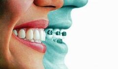 دیگر با ارتودنسی دندان هایتان، زشت نخواهید شد؛ برای اولین بار با «ارتودنسی نامرئی» از تی وی پلاس آشنا شوید