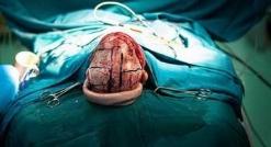 شما هم یکی از پر بیننده ترین ویدئوهای دنیا ر ا ببینید: مردی که حین جراحی روی مغزش، گیتار می زند!