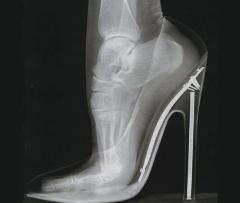 کفش پاشنه بلند با پاها چه میکند؟