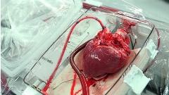 ویدئویی از لحظات نفسگیر جراحی پیوند قلب در بیمارستان قلب و عروق شهید رجایی/اختصاصی تی وی پلاس