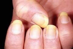 عفونت قارچی که بیشتر خانم ها را تهدید می کند/عفونت ناخن و انگشت