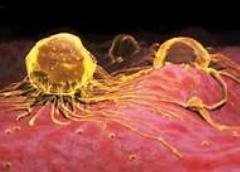 سرطان چگونه سراغ ما می آید/حتما ببینید