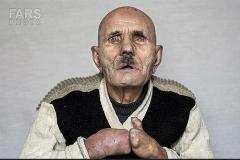 اگر طاقتش را ندارید این ویدئو را نبینید/مستندی تکان دهنده از زندگی جذامی هایی که در چند کیلومتری تبریز زندگی متفاوتی دارند