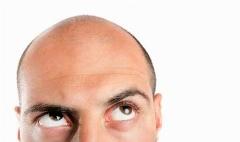 اگر کابوس ریزش مو دست از سرتان برنمی دارد، این ویدئو دوای دردتان است/این غذاها را برای موهایتان سرو کنید