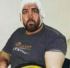 ماموران شهرداری ملی پوش ایران را سیاه و کبود کردند؛ امیر ملکی پور مورد ضرب و شتم قرار گرفت
