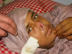 خوش شانسی زنی افغان که شوهرش دماغش را برید!