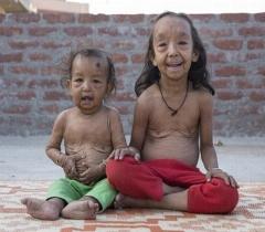 تصاویر پیر شدن دختر و پسر هندی در هفت و یک سالگی با بیماری ای مرموز و ناشناخته