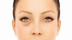جدیدترین متد برای درمان تیرگی و گودی زیر چشم بدون هیچ گونه عارضه جانبی
