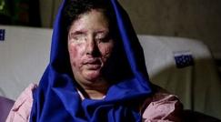 فریادهای دختر قربانی اسیدپاشی بعد از بازگشت بینایی اش + فیلم