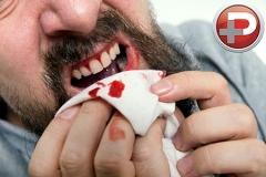 گرانترین عضو بدنتان را مفت از دست ندهید؛ غذا با طعم خون را جدی بگیرید؛ روشی ساده برای جلوگیری از عفونت لثه ها و از بین رفتن دندان هایتان