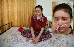 ناگفته دختر فراری از همخوابی های وحشیانه با داعش
