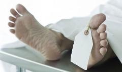 جنازه ای که مچ دست کالبد شکاف را در پزشکی قانونی گرفت