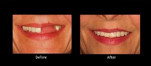 دیگر حسرت دندان های سفید و ردیف آدم معروف ها را نخورید؛ جدیدترین روش ایمپلنت که بدون جراحی دندان های از دست رفته تان بر می گردد؛ کلینیک تی وی پلاس تقدیم می کند