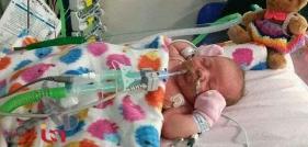 نوزادی که جای خون در رگش آب جاری است