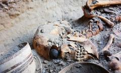 اسکلت و چشم مصنوعی زن 28 ساله ایرانی شهر سوخته راببینید
