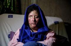 درخواست فوری دختر قربانی اسیدپاشی از جواد ظریف: این آخرین فرصت برای دیدن چشم های دخترم است
