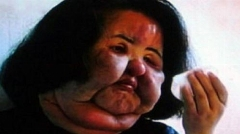 تصویر وحشتناک زنی که به صورت خود روغن مایع تزریق کرد!