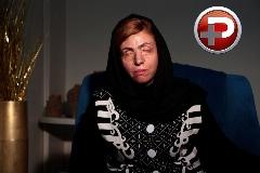 اسیدپاشی وحشیانه روی عروس ایرانی؛ چشم هایی که پای کینه پدرشوهر سنگ دل کور شدند/اختصاصی تی وی پلاس