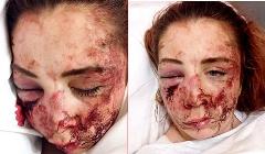 دختر پولداری که صورتش را در یک سرقت وحشیانه از دست داد