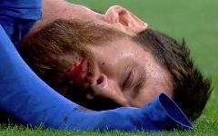 خطاهای خونین بار با آرنج در دنیای فوتبال!