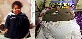 انصراف پزشکان از درمان چاق ترین زن دنیا!