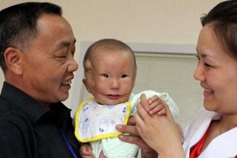 پسر بچه ای که به خاطر چهره متفاوت و عجیبش در دنیا آشوب به راه افتاد!