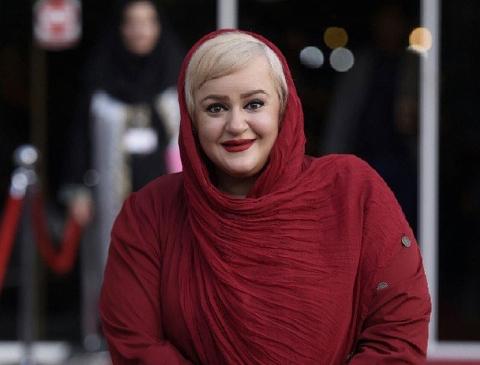 جراحی لاغری بازیگر زن تلویزیون ایران، این بلا را سرش آورده است!