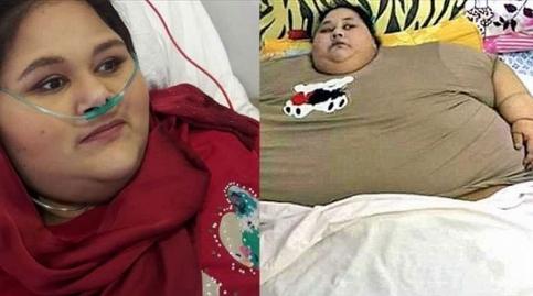 چاق ترین دختر جهان در آستانه باربی شدن/ تصویری جدید از ایمان بعد از کاهش وزن
