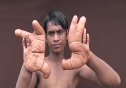 پسربچهای با انگشتان ۱۳ کیلویی!