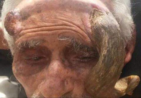 بریدن شاخ پیرمرد ۱۴۰ ساله موجب مرگش شد
