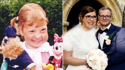 ازدواج با پسر همسایه پس از 18 جراحی زیبایی!