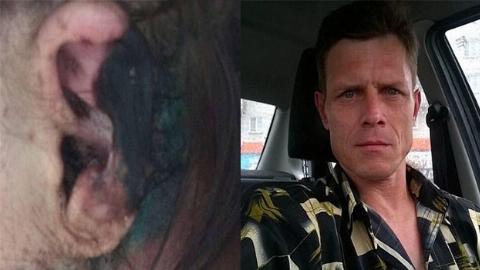 عکس هولناک: قرار عاشقانه زن زیبا با مرد آدمخوار!/ صورت زن خورده شد