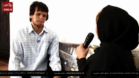 لحظه دردناک سوختن صورت پسر ایرانی پیش چشمان مادرش: از ترس خودم را در آینه نگاه نمی کردم/ فقط می خواهم صورتم خوب شود