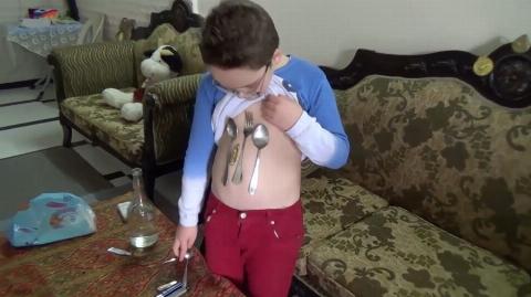 پسربچه سوری که ویژگی آهنربایی دارد + فیلم