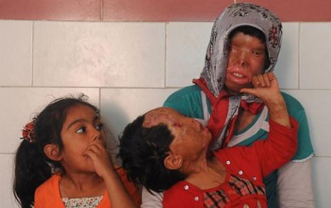 چهره تکان دهنده دختربچه ای که توسط پدرش قربانی اسیدپاشی شد: آرزو می کنم پدرم را بکشند!/کودکان بی گناهی که قربانی اعتیاد می شوند