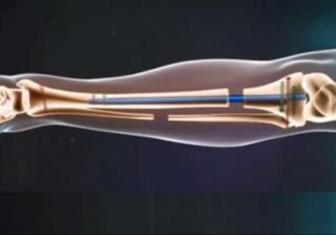 انیمیشنی جالب از نحوه عمل جراحی افزایش قد