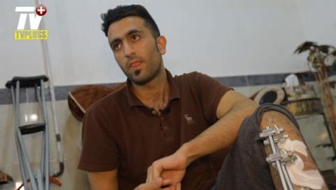 قطع پا؛ درخواست فوری برای نجات زندگی این پسر جوان ایرانی: شش سال خانه نشینی و 9 بار جراحی سنگین؛ عاقبت تصادف شدید با موتورسیکلت/محمدباقر را تنها نگذاریم