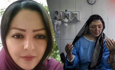 مریم، قربانی جنایت اسیدپاشی شوهر شیطان صفت/ عکس های دیده نشده از زن جوان و زیبای اصفهانی