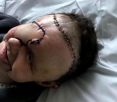 اشتباه پزشکی، بیمار را تبدیل به زامبی کرد! + تصویر