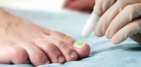درمان شایع ترین مشکل پا، بدون درد، بدون خونریزی  جدیدترین روش درمان بدون جراحی فرورفتن ناخن در گوشت