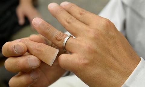 ویدیویی حیرت انگیز از مراحل ساخت انگشت واقعی در ایران/ اگر انگشت هایتان قطع هم شد نگران نباشید/ برای اولین بار مرکز ساخت پروتزهای زیبایی را اینجا ببینید