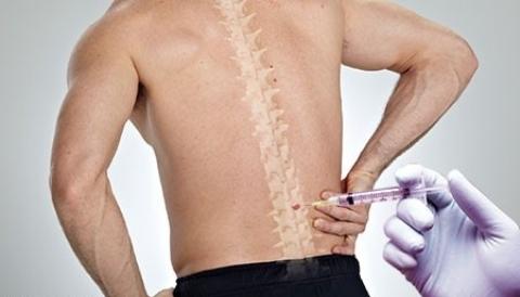 گاز اوزون، بدن تان را بی درد می کند!/ اوزون، درمانی بدون عوارض و بدون خونریزی برای آرتروز/ دکتر بهنود صمدی از درمان بیماری های اسکلتی-عضلانی می گوید
