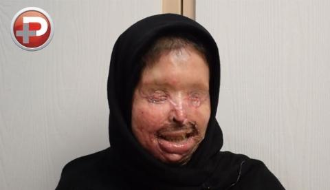 التماس های دردناک دختر زیبای ایرانی وقتی همسرش با اسیدپاشی دنیا و آرزوهایش را به آتش کشید